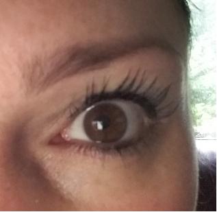 Eye with